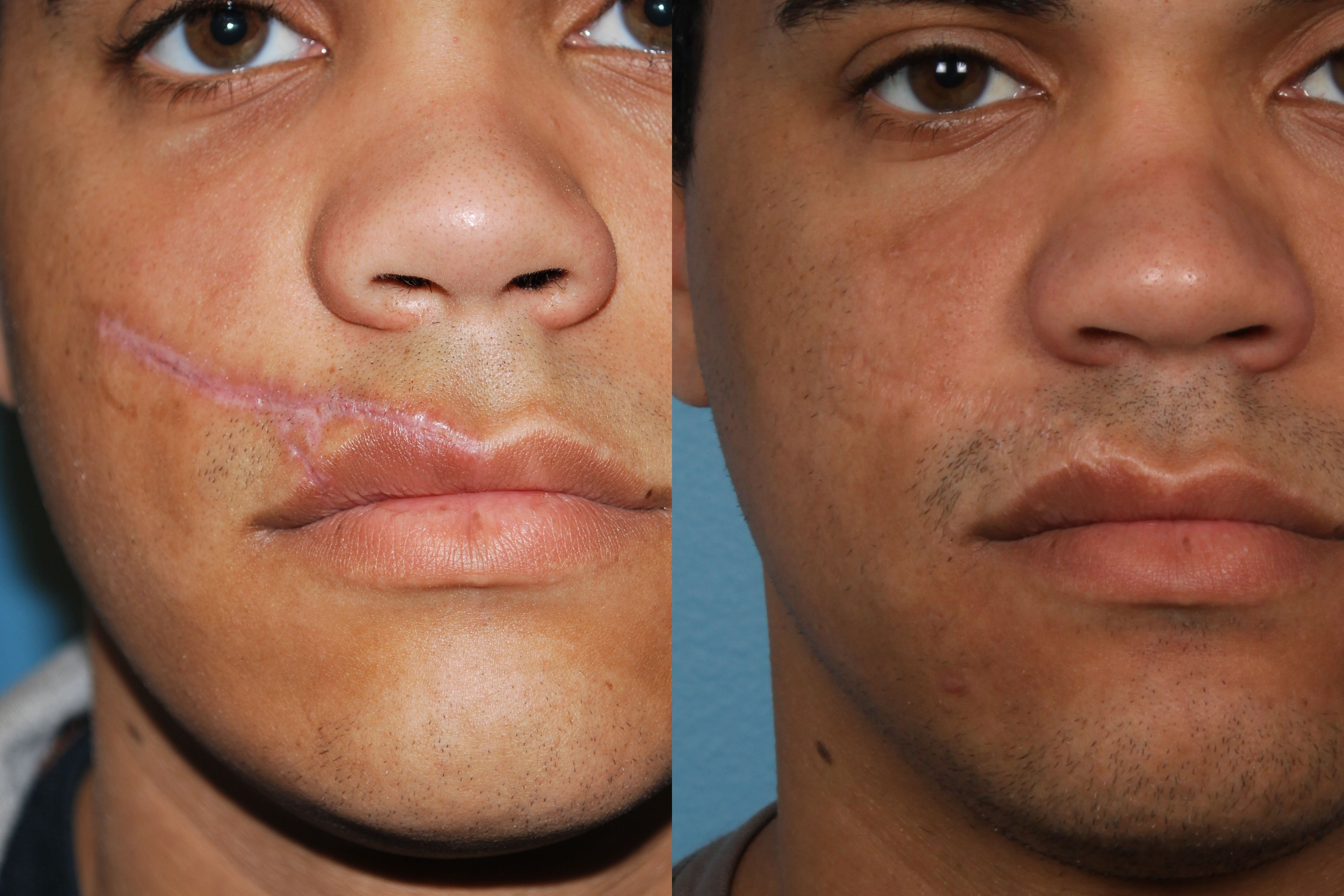 Scar Revision Northwestern Facial Plastic Surgery