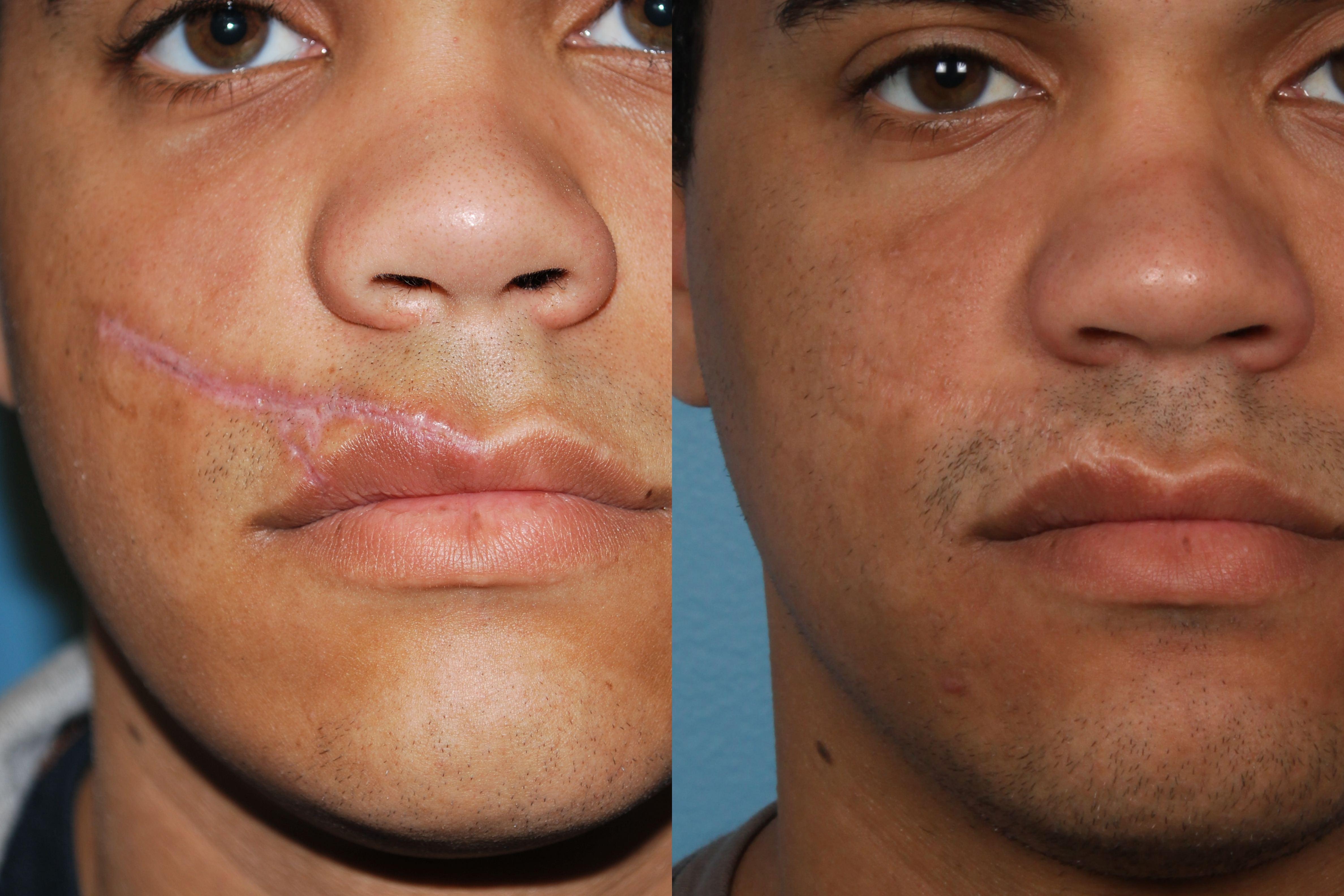 Facial Scar Surgery 36