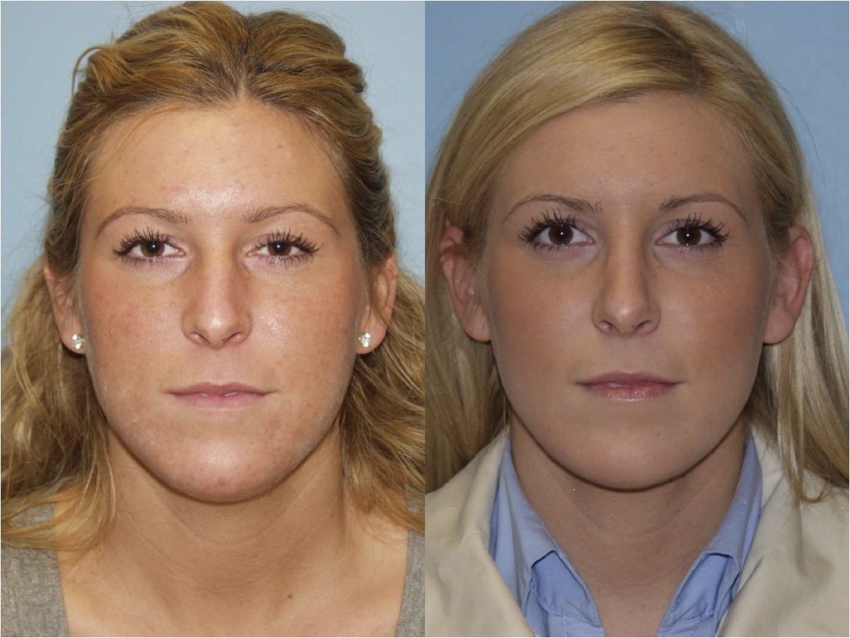 Evanston Nose Job Surgeon