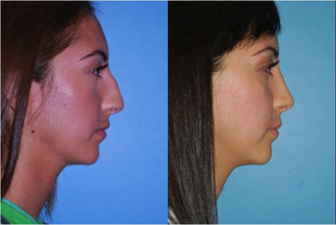 Highland Park Rhinoplasty Doctors