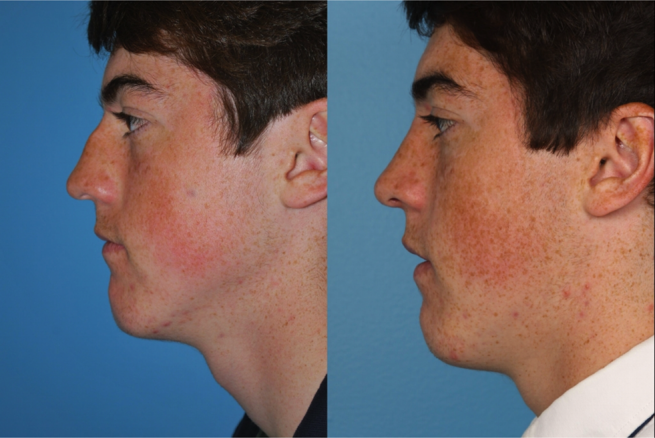 Elgin Rhinoplasty Doctors