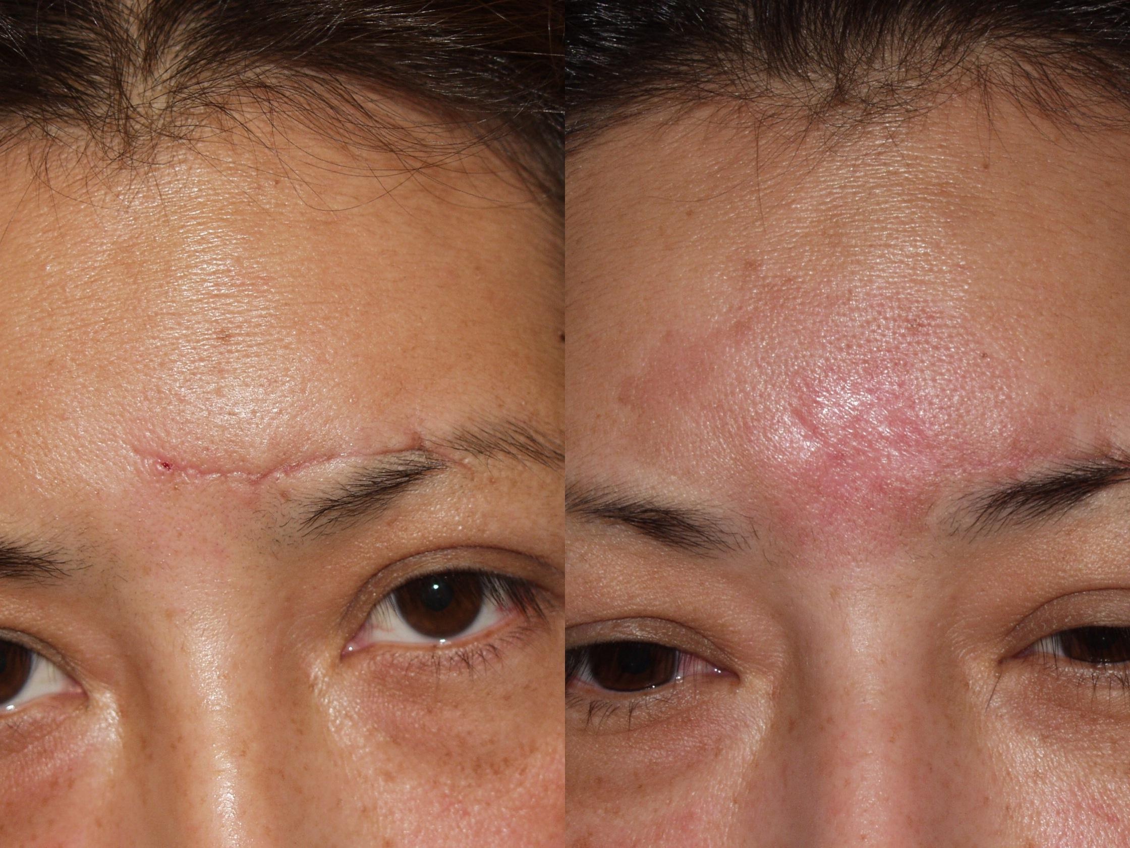 Facial scar revisions