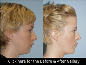 Chicago Chin & Cheek Implant Surgery