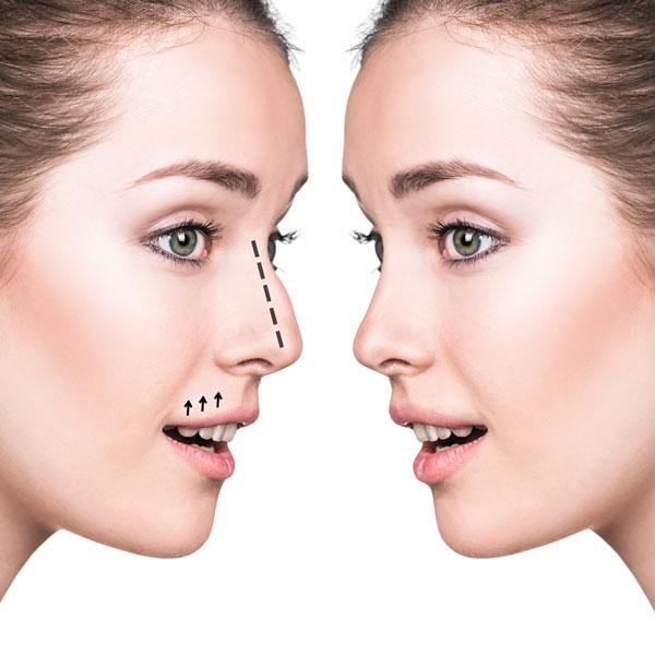 home-nose