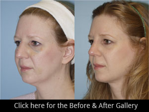 Chicago Rhinoplasty