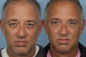 eyelid surgery, blepharoplasty dr sidle chicago